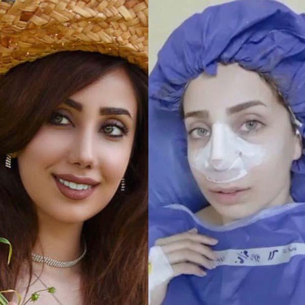 7 طرق تخفيف تورم الانف بعد عملية تجميل علاج تورم الانف بعد عملية التجميل الانف في ايران