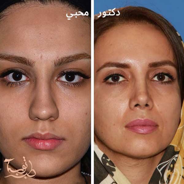 عملیة تجمیل الانف اللحمی تجميل الانف اللحمي والعظمي عمليات تجميل الانف اللحمي في ايران
